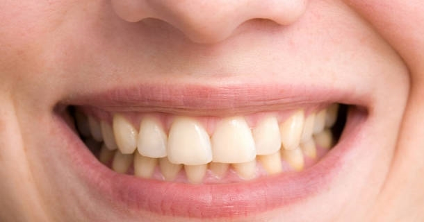 Żółte zęby - dlaczego mają taki odcień?