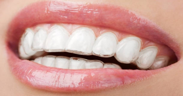 Paski do wybielania zębów
